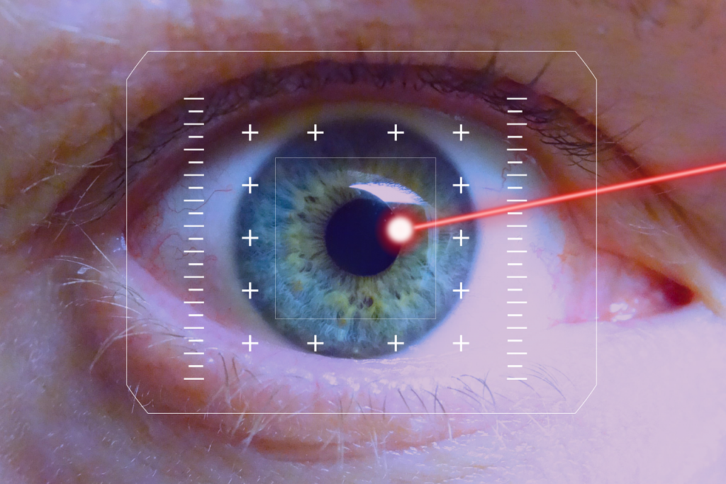 Laser eye surgery cost